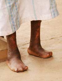 Leprosy Bacterial Infection World Health